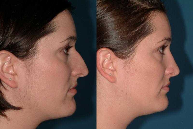Как сделать нос меньше в домашних условиях